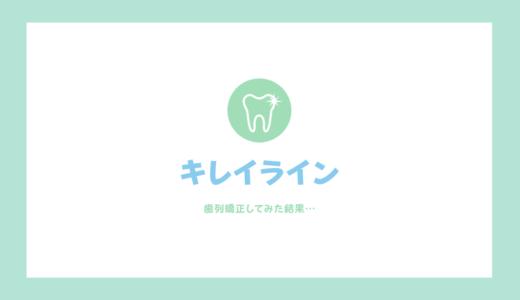 【体験談】キレイラインって効果ある?1年歯列矯正やってみた結果を写真付きで公開